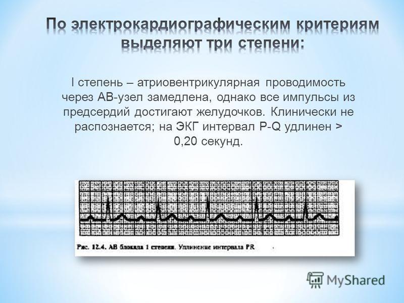 I степень – атриовентрикулярная проводимость через АВ-узел замедлена, однако все импульсы из предсердий достигают желудочков. Клинически не распознается; на ЭКГ интервал P-Q удлинен > 0,20 секунд.