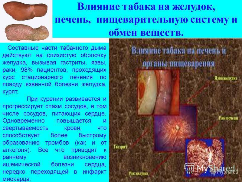 Влияние табака на желудок, печень, пищеварительную систему и обмен веществ. Составные части табачного дыма действуют на слизистую оболочку желудка, вызывая гастриты, язвы, раки, 98% пациентов, проходящих курс стационарного лечения по поводу язвенной