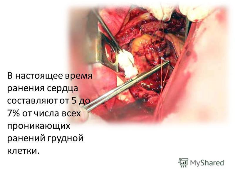В настоящее время ранения сердца составляют от 5 до 7% от числа всех проникающих ранений грудной клетки.