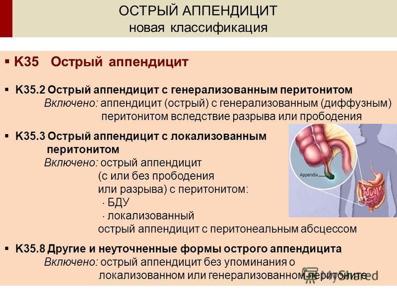 ОСТРЫЙ АППЕНДИЦИТ новая классификация K35 Острый аппендицит K35.2 Острый аппендицит с генерализованным перитонитом Включено: аппендицит (острый) с генерализованным (диффузным) перитонитом вследствие разрыва или прободения K35.3 Острый аппендицит с ло