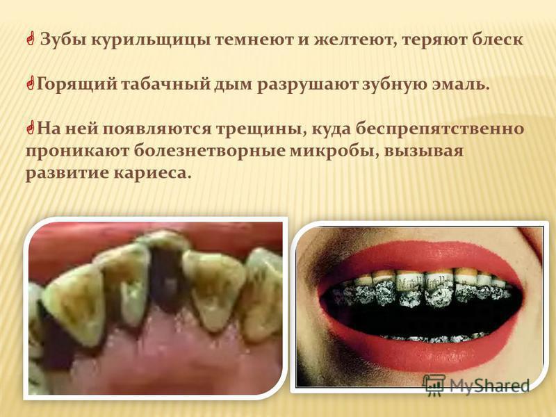Зубы курильщицы темнеют и желтеют, теряют блеск Горящий табачный дым разрушают зубную эмаль. На ней появляются трещины, куда беспрепятственно проникают болезнетворные микробы, вызывая развитие кариеса.