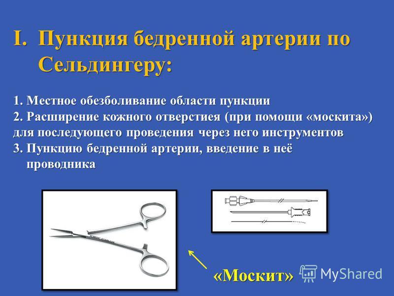 I.Пункция бедренной артерии по Сельдингеру: 1. Местное обезболивание области пункции 2. Расширение кожного отверстия ( при помощи « москита ») для последующего проведения через него инструментов 3. Пункцию бедренной артерии, введение в неё проводника