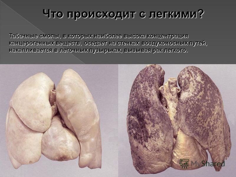 Что происходит с легкими? Табачные смолы, в которых наиболее высока концентрация канцерогенных веществ, оседает на стенках воздухоносных путей, накапливается в легочных пузырьках, вызывая рак легкого.
