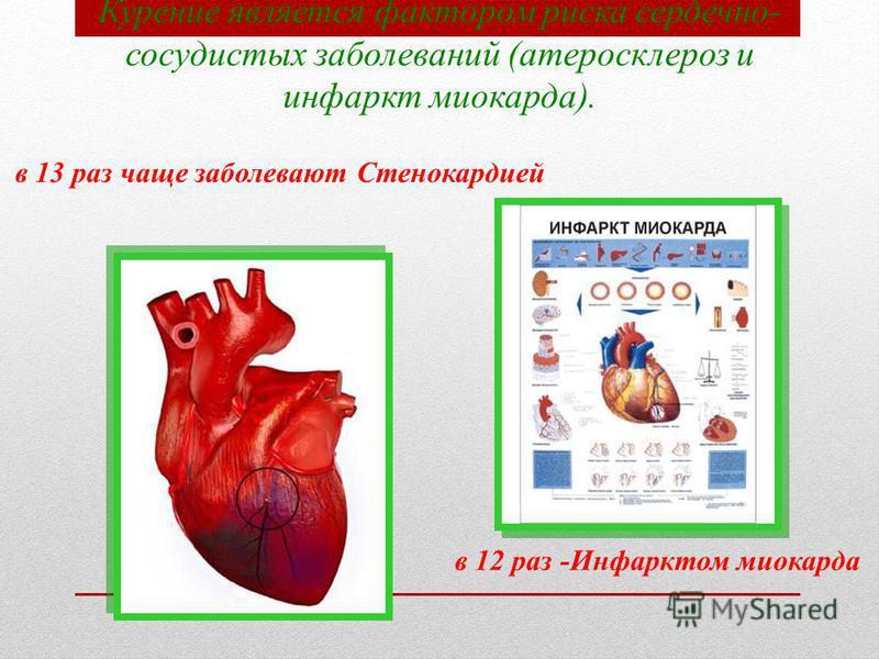 Курение является фактором риска сердечно- сосудистых заболеваний (атеросклероз и инфаркт миокарда). в 13 раз чаще заболевают Стенокардией в 12 раз -Инфарктом миокарда