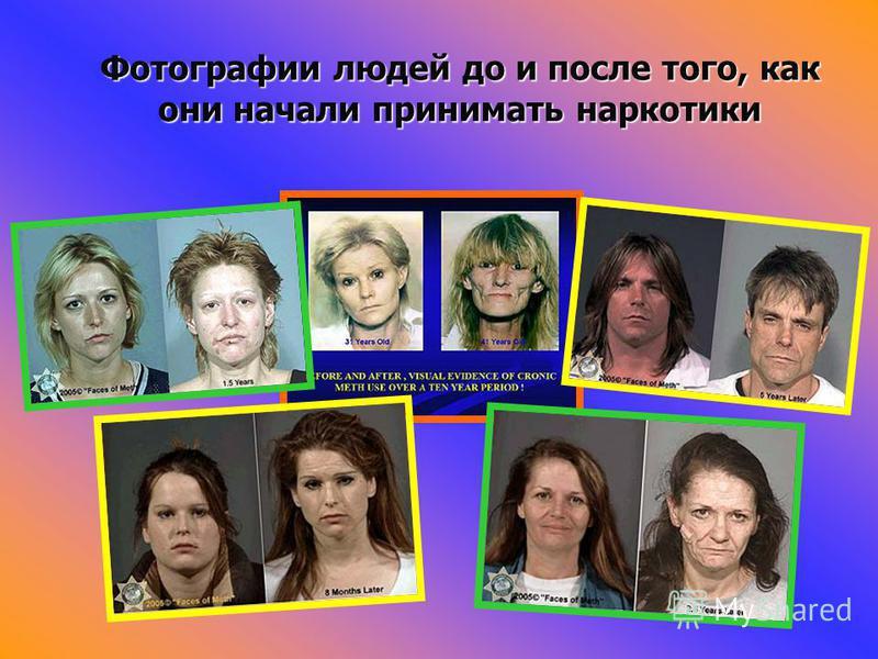 Фотографии людей до и после того, как они начали принимать наркотики