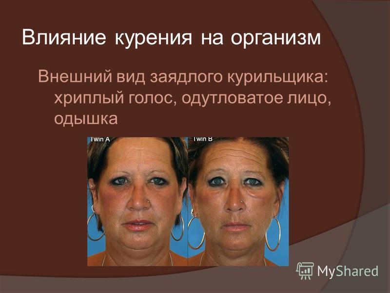 Влияние курения на организм Внешний вид заядлого курильщика: хриплый голос, одутловатое лицо, одышка