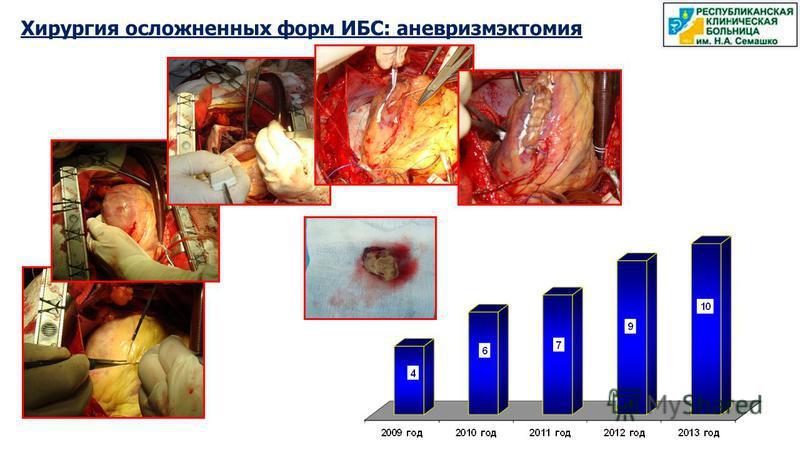 Хирургия осложненных форм ИБС: аневризмэктомия
