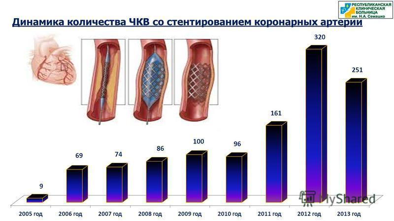 Динамика количества ЧКВ со стентированием коронарных артерий