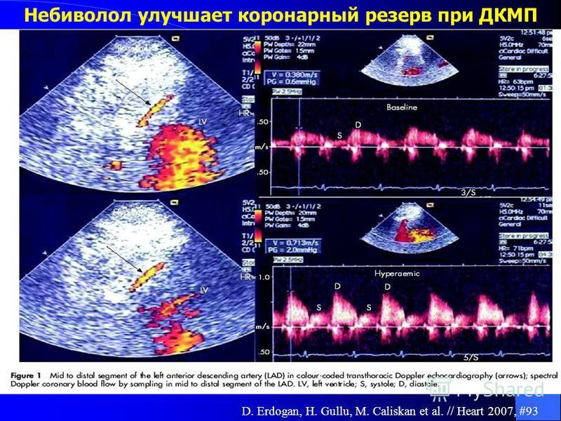 Небиволол улучшает коронарный резерв при ДКМП D. Erdogan, H. Gullu, M. Caliskan et al. // Heart 2007, #93