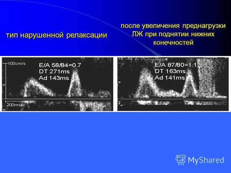 Трансформация диастолической дисфункции ЛЖ тип нарушенной релаксации после увеличения преднагрузки ЛЖ при поднятии нижних конечностей