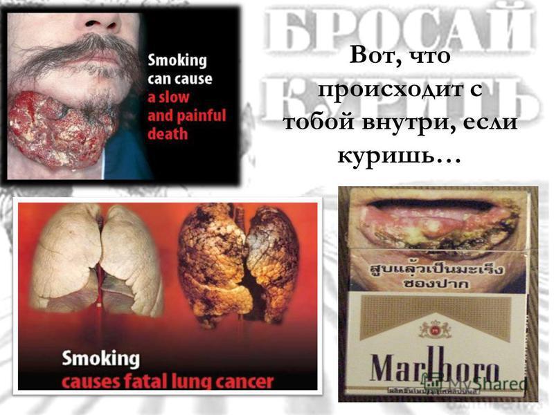 Вот, что происходит с тобой внутри, если куришь…