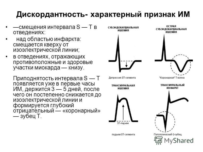 Дискордантность- характерный признак ИМ смещения интервала S T в отведениях: над областью инфаркта: смещается кверху от изоэлектрической линии; в отведениях, отражающих противоположные и здоровые участки миокарда книзу. Приподнятость интервала S Т по