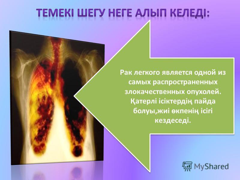 Рак легкого является одной из самых распространенных злокачественных опухолей. Қатерлі ісіктердің пайда болуы,жиі өкпенің ісігі кездеседі. Рак легкого является одной из самых распространенных злокачественных опухолей. Қатерлі ісіктердің пайда болуы,ж