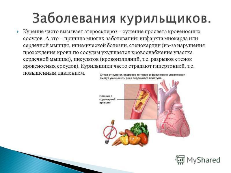 Курение часто вызывает атеросклероз – сужение просвета кровеносных сосудов. А это – причина многих заболеваний: инфаркта миокарда или сердечной мышцы, ишемической болезни, стенокардии (из-за нарушения прохождения крови по сосудам ухудшается кровоснаб
