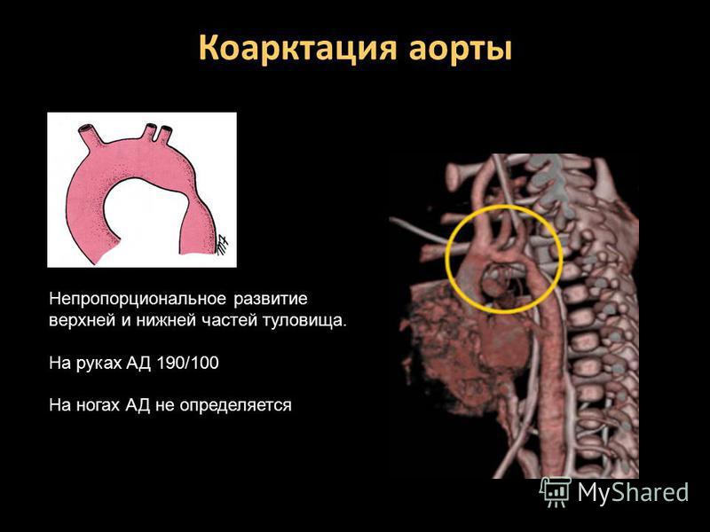 Коарктация аорты Непропорциональное развитие верхней и нижней частей туловища. На руках АД 190/100 На ногах АД не определяется