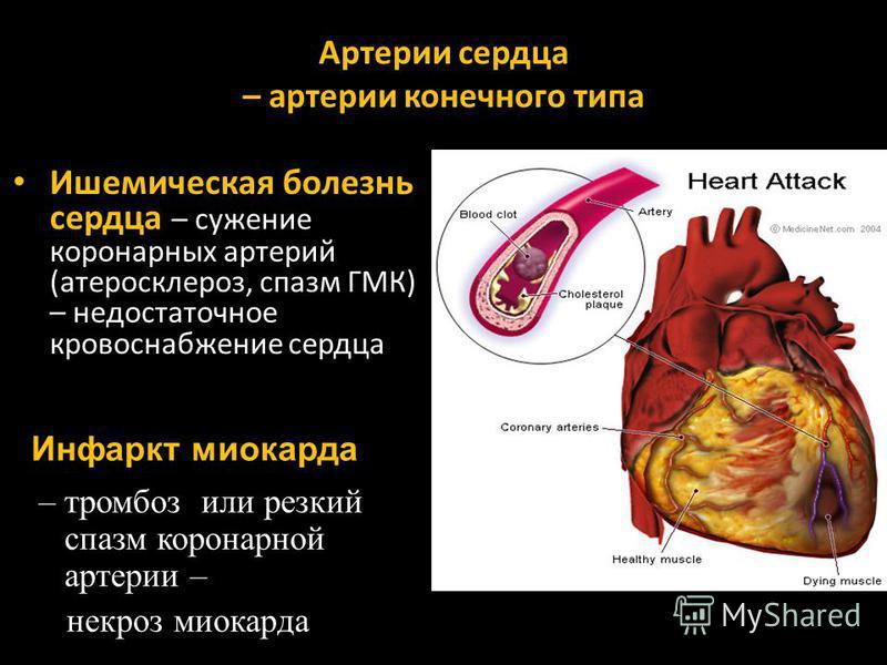 Артерии сердца – артерии конечного типа Ишемическая болезнь сердца – сужение коронарных артерий (атеросклероз, спазм ГМК) – недостаточное кровоснабжение сердца – тромбоз или резкий спазм коронарной артерии – некроз миокарда Инфаркт миокарда