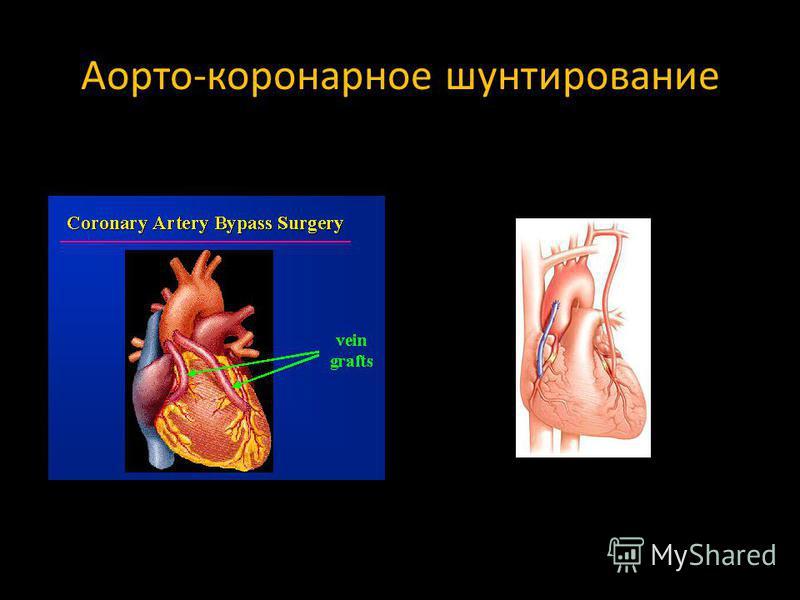 operatsiya-na-sosud-v-spermotoke