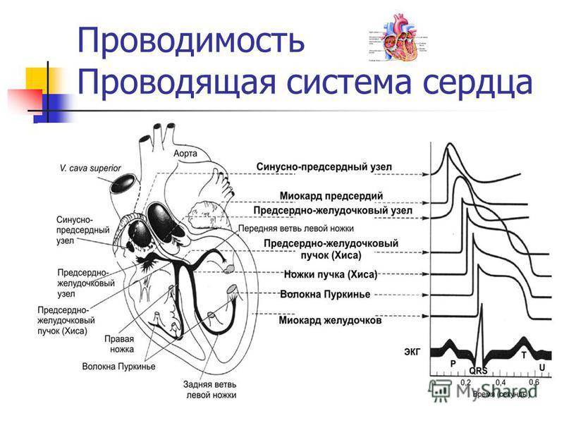денервированное сердце
