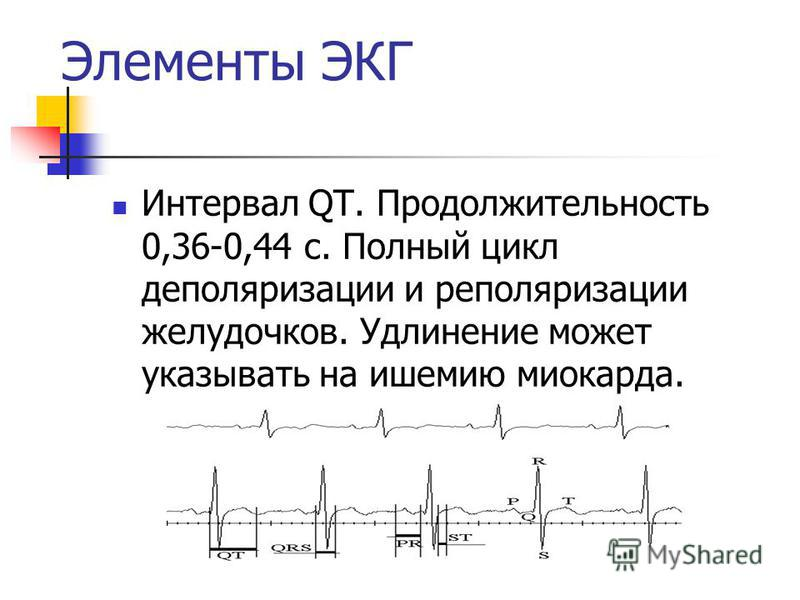 Интервал QT. Продолжительность 0,36-0,44 с. Полный цикл деполяризации и реполяризации желудочков. Удлинение может указывать на ишемию миокарда. Элементы ЭКГ
