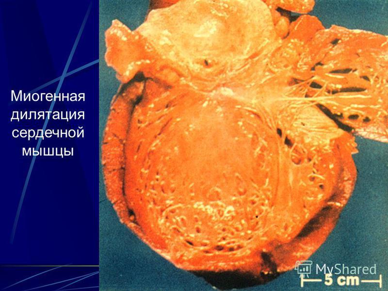 13 Миогенная дилатация сердечной мышцы