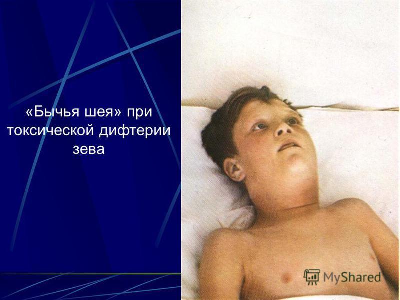 5 «Бычья шея» при токсической дифтерии зева