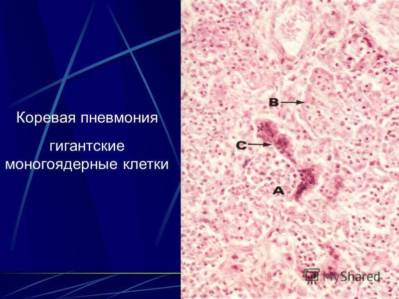 56 Коревая пневмония гигантские многоядерные клетки