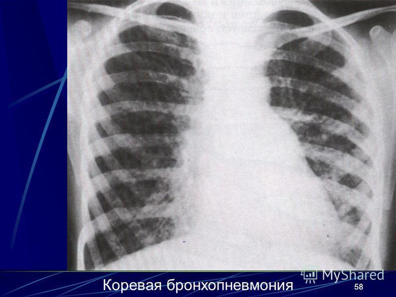 58 Коревая бронхопневмония