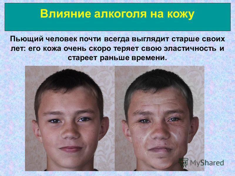 Влияние алкоголя на кожу Пьющий человек почти всегда выглядит старше своих лет: его кожа очень скоро теряет свою эластичность и стареет раньше времени.