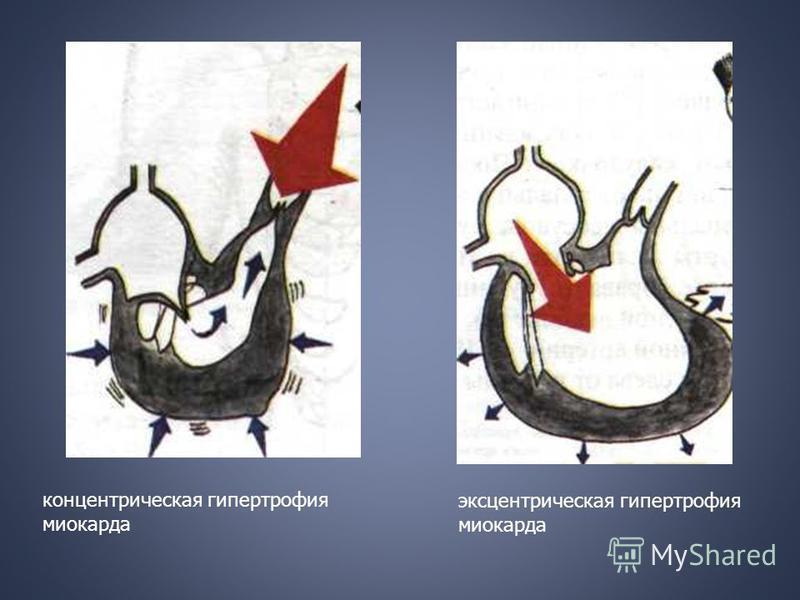 концентрическая гипертрофия миокарда эксцентрическая гипертрофия миокарда