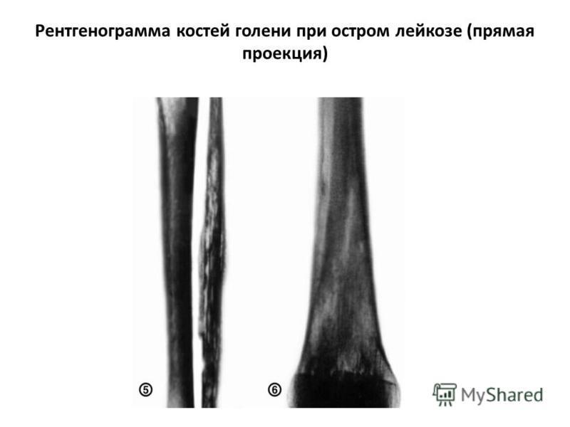 Рентгенограмма костей голени при остром лейкозе (прямая проекция)