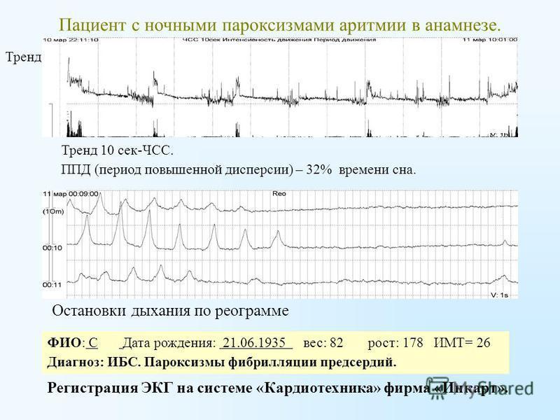 Пациент с ночными пароксизмами аритмии в анамнезе. Регистрация ЭКГ на системе «Кардиотехника» фирма «Инкарт». Тренд 10 сек-ЧСС. ППД (период повышенной дисперсии) – 32% времени сна. Тренд 10 сек ЧСС ФИО: С Дата рождения: 21.06.1935 вес: 82 рост: 178 И