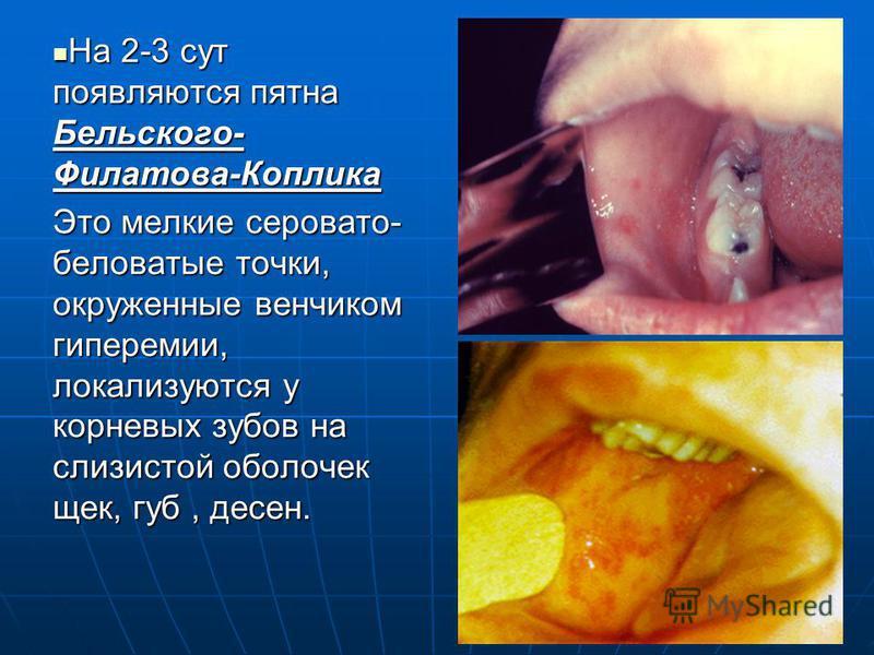 На 2-3 сут появляются пятна Бельского- Филатова-Коплика На 2-3 сут появляются пятна Бельского- Филатова-Коплика Это мелкие серовато- беловатые точки, окруженные венчиком гиперемии, локализуются у корневых зубов на слизистой оболочек щек, губ, десен.