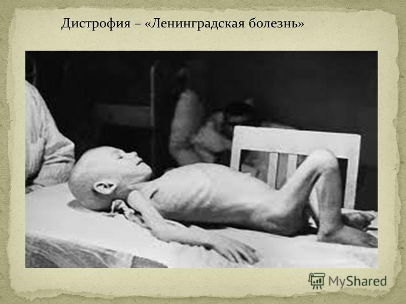 Дистрофия – «Ленинградская болезнь»
