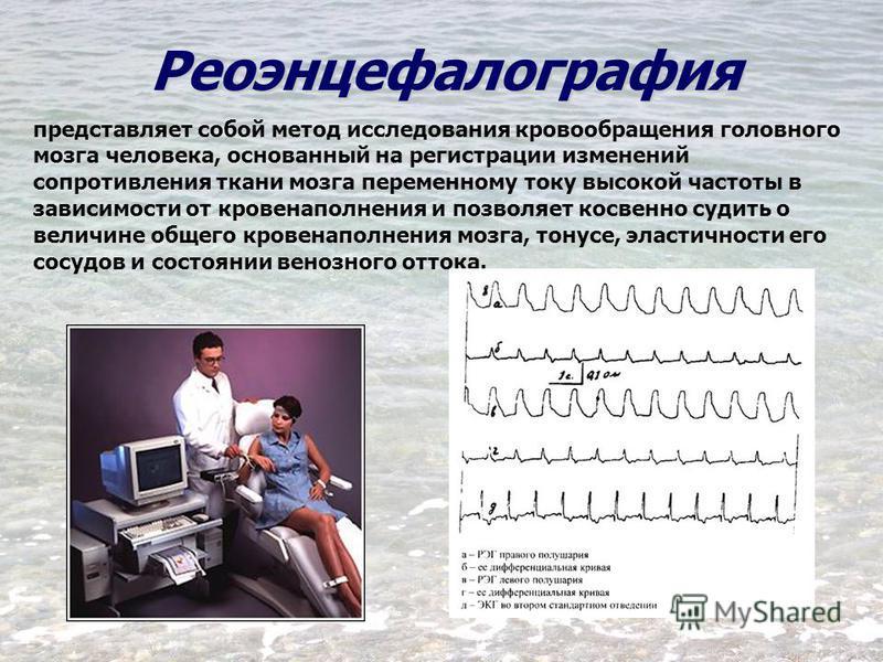Реоэнцефалография представляет собой метод исследования кровообращения головного мозга человека, основанный на регистрации изменений сопротивления ткани мозга переменному току высокой частоты в зависимости от кровенаполнения и позволяет косвенно суди