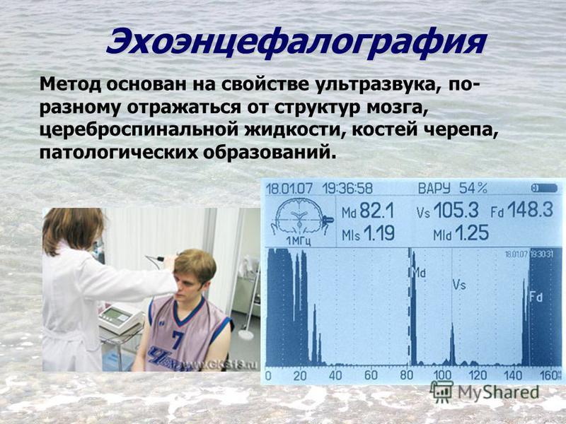 Эхоэнцефалография Метод основан на свойстве ультразвука, по- разному отражаться от структур мозга, цереброспинальной жидкости, костей черепа, патологических образований.