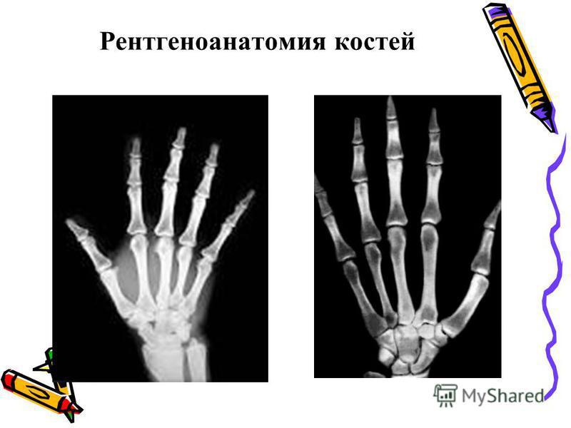 Рентгеноанатомия костей