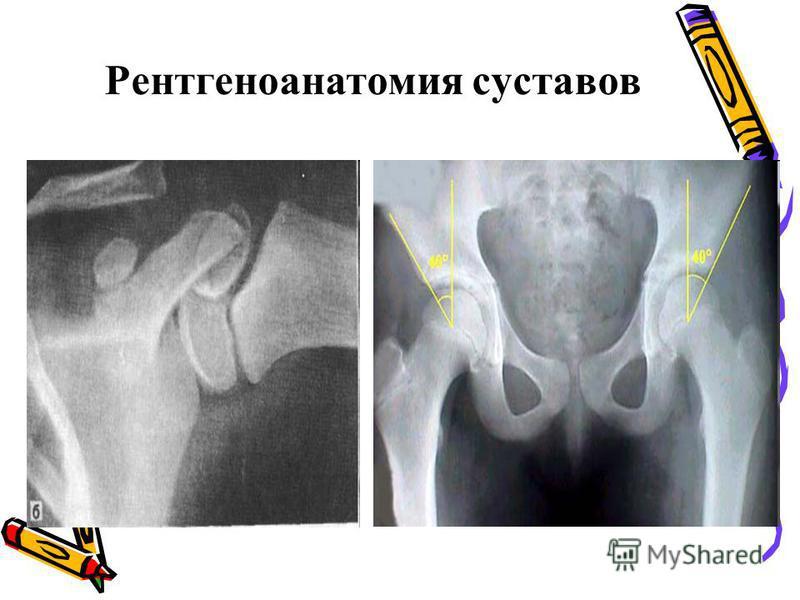 Рентгеноанатомия суставов