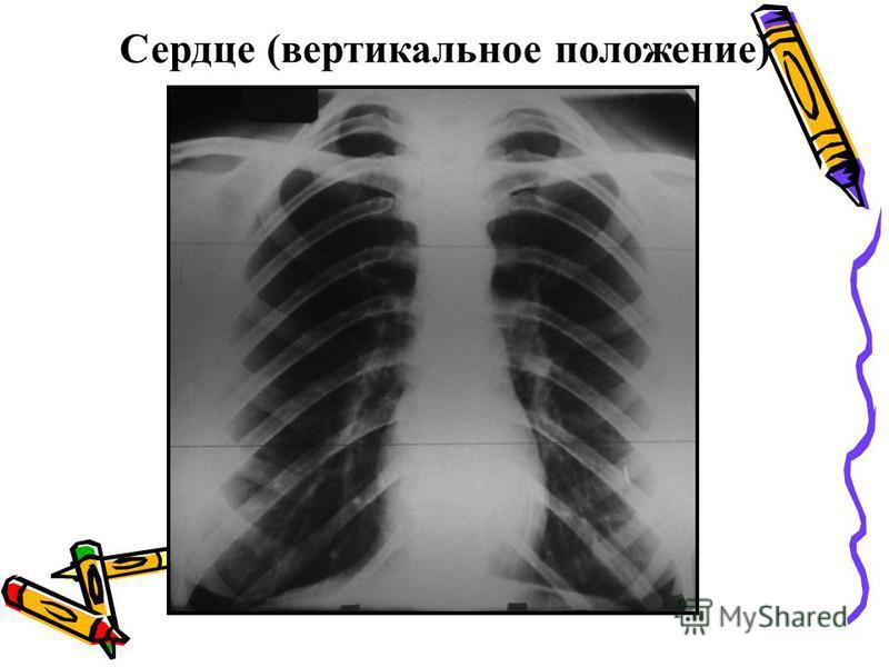 Сердце (вертикальное положение)