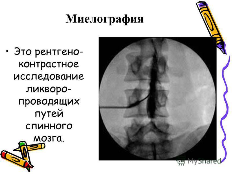 Миелографея Это рентгеноконтрастное исследование ликвора- проводящих путей спинного мозга.
