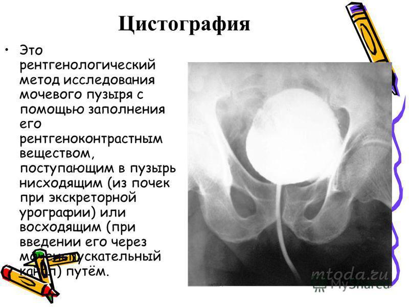 Цистографея Это рентгенологический метод исследования мочевого пузыря с помощью заполнения его рентгеноконтрастным веществом, поступающим в пузырь нисходящим (из почек при экскреторной урографии) или восходящим (при введении его через мочеиспускатель