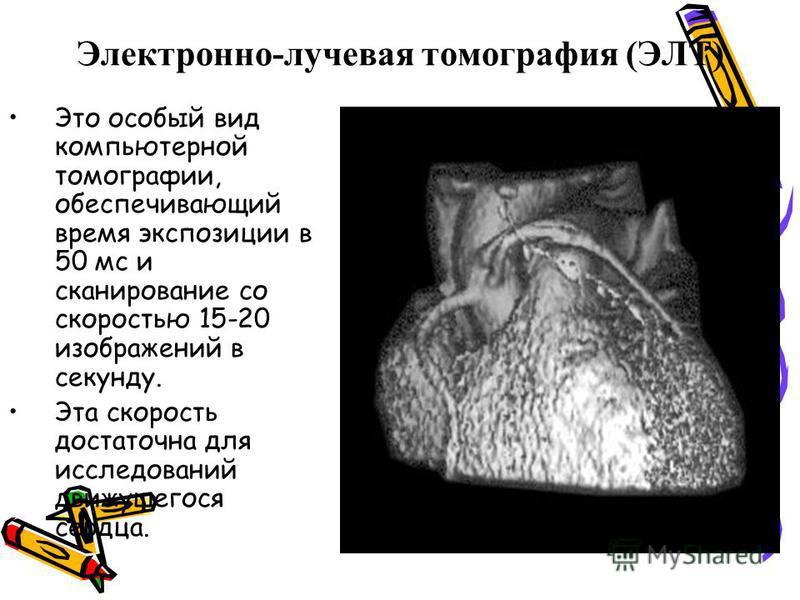 Электронно-лучевая томографея (ЭЛТ) Это особый вид компьютерной томографии, обеспечивающий время экспозиции в 50 мс и сканирование со скоростью 15-20 изображений в секунду. Эта скорость достаточна для исследований движущегося сердца.