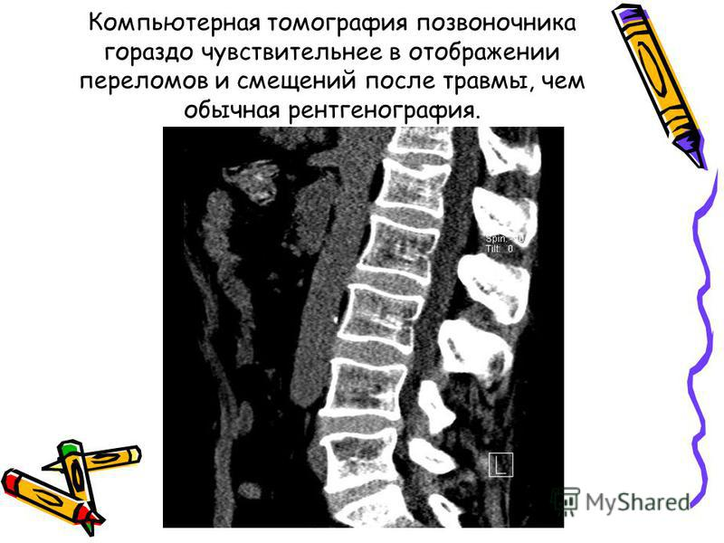 Компьютерная томографея позвоночника гораздо чувствительнее в отображении переломов и смещений после травмы, чем обычная рентгенографея.