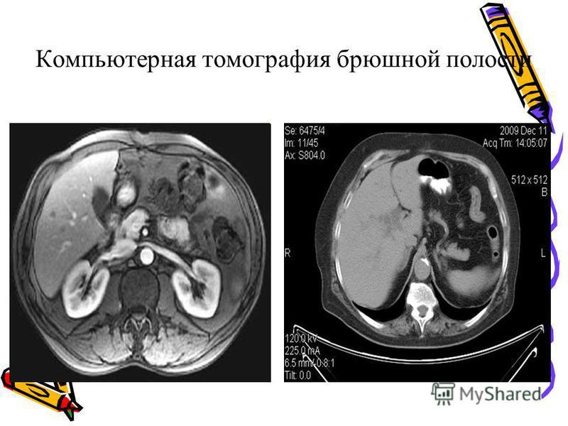 Компьютерная томографея брюшной полости
