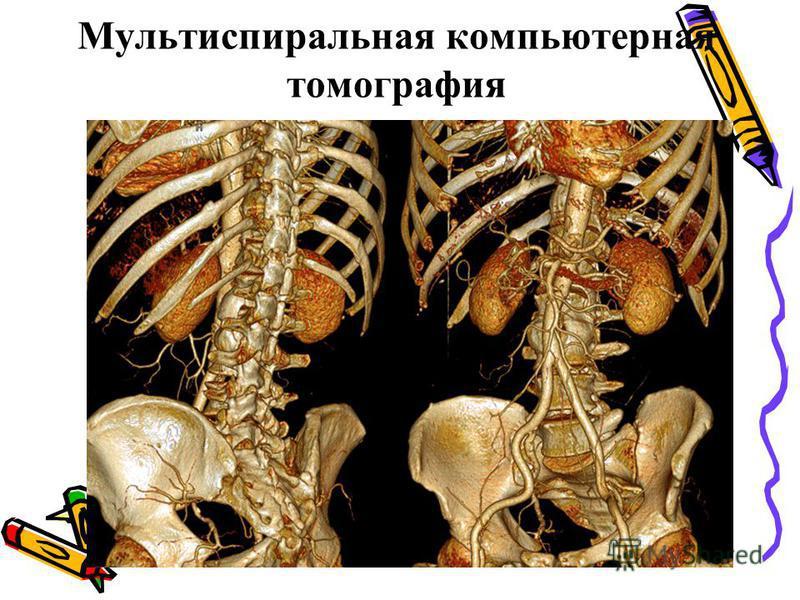 Мультиспиральная компьютерная томографея