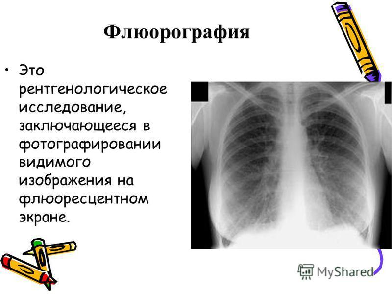 Флюорографея Это рентгенологическое исследование, заключающееся в фотографировании видимого изображения на флюоресцентном экране.