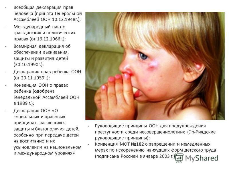 -Всеобщая декларация прав человека (принята Генеральной Ассамблеей ООН 10.12.1948 г.); -Международный пакт о гражданских и политических правах (от 16.12.1966 г.); -Всемирная декларация об обеспечении выживания, защиты и развития детей (30.10.1990 г.)