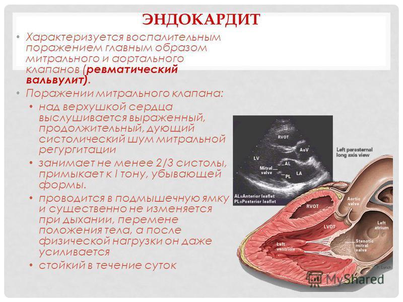 ЭНДОКАРДИТ Характеризуется воспалительным поражением главным образом митрального и аортального клапанов ( ревматический вальвулит). Поражении митрального клапана: над верхушкой сердца выслушивается выраженный, продолжительный, дующий систолический шу