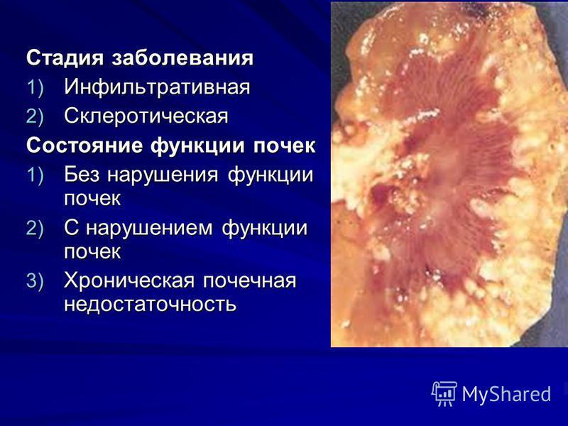 Стадия заболевания 1) Инфильтративная 2) Склеротическая Состояние функции почек 1) Без нарушения функции почек 2) С нарушением функции почек 3) Хроническая почечная недостаточность