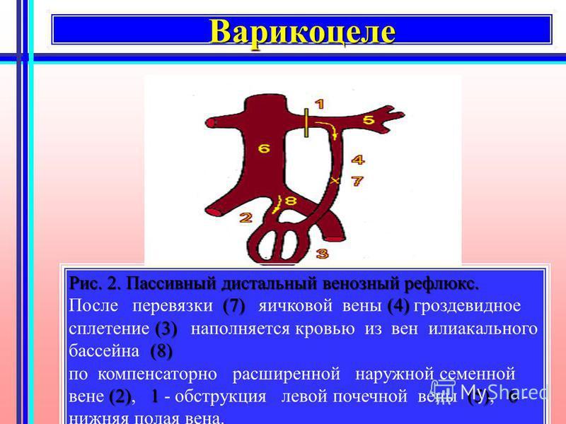 Варикоцеле Варикоцеле Рис. 2. Пассивный дистальный венозный рефлюкс. (7)(4) (3) (8) После перевязки (7) яичковой вены (4) гроздевидное сплетение (3) наполняется кровью из вен илиакального бассейна (8) (2)1(5)6 по компенсаторно расширенной наружной се