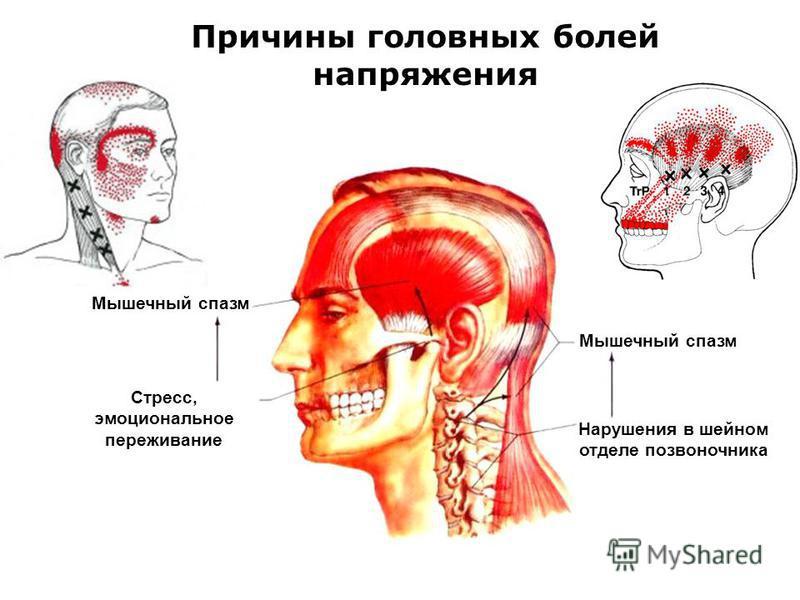 Причины головных болей напряжения Мышечный спазм Стресс, эмоциональное переживание Мышечный спазм Нарушения в шейном отделе позвоночника